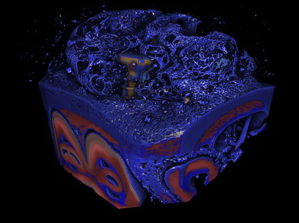 Metal-polymer-ceramic composite printing to improve osseointegration