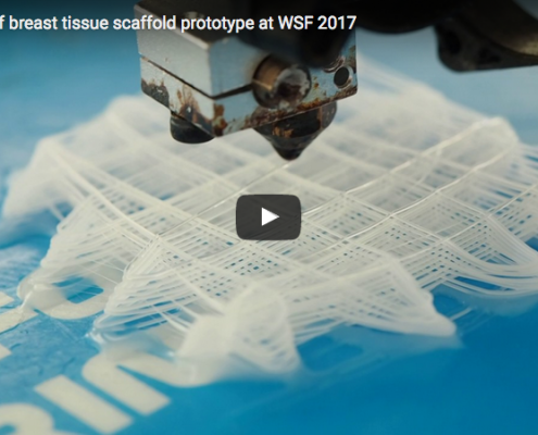 TRI Breast tissue engineering